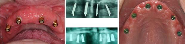 Εμφυτευματα δοντιων - Κατανομη στη γναθο