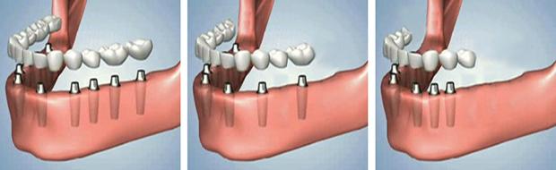 Εμφυτευματα δοντιων - Κατανομή στην κατω γναθο