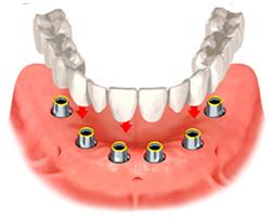 Εμφυτευματα δοντιων - Συγκολλούμενη αποκατάσταση